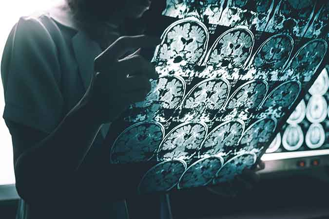 A researcher reviews a series of MRI slices of a brain.